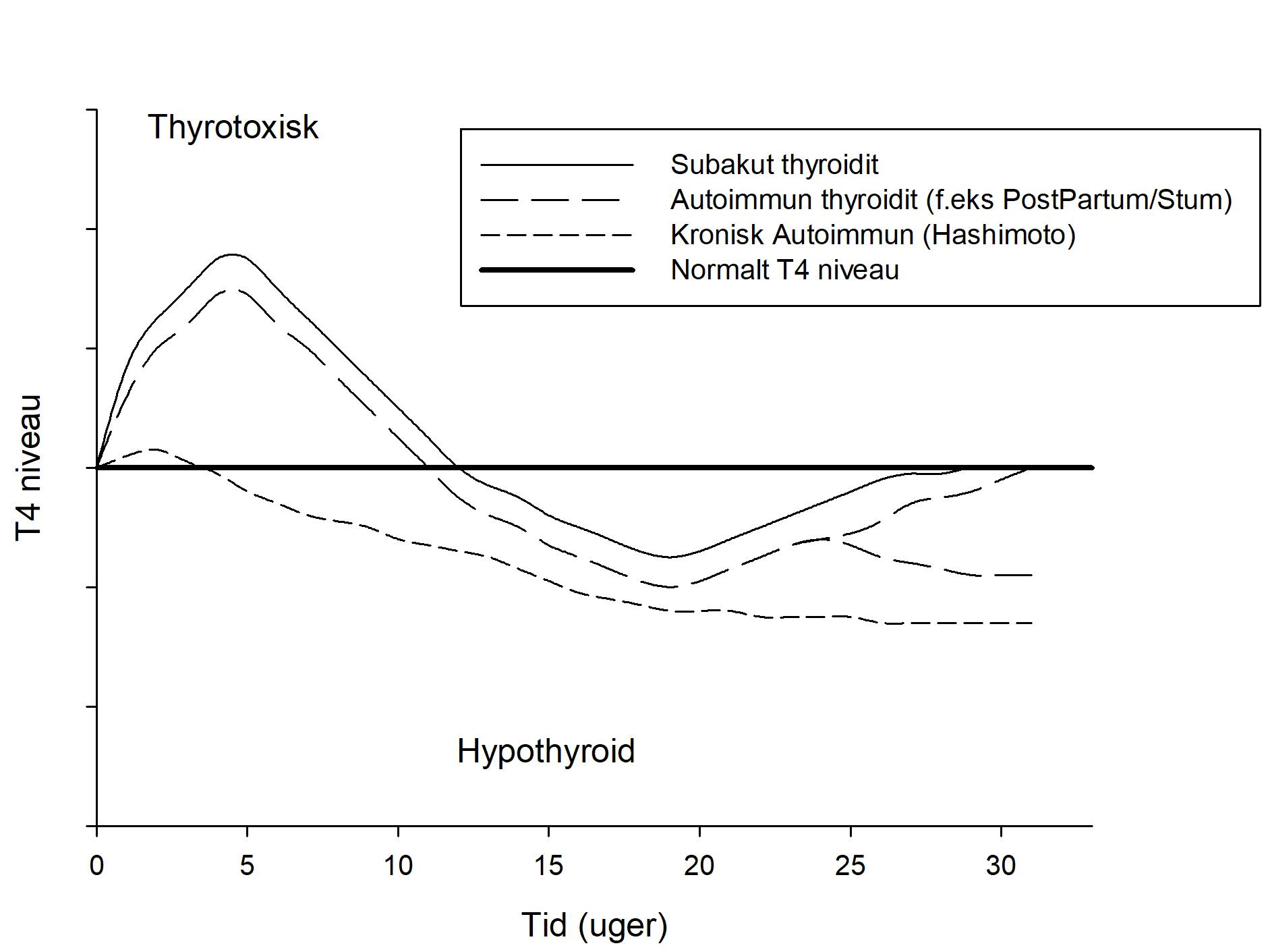 thyroidit nbv